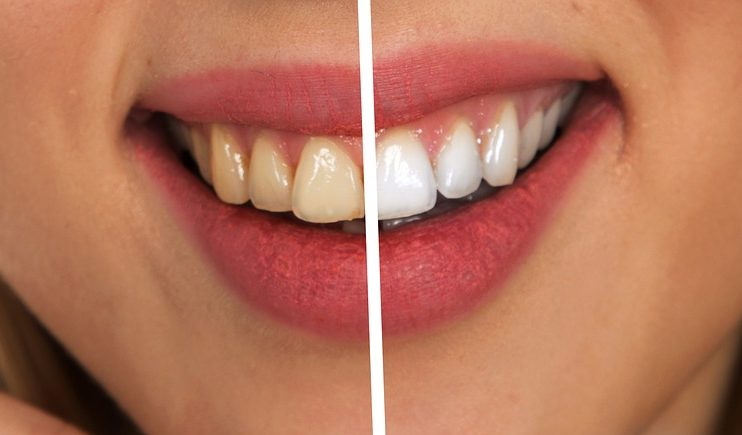 Rogue Dentists Using Household Bleach To Whiten Teeth Claims